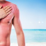 13 Sunburn Questions